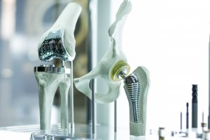 knee hip replacement